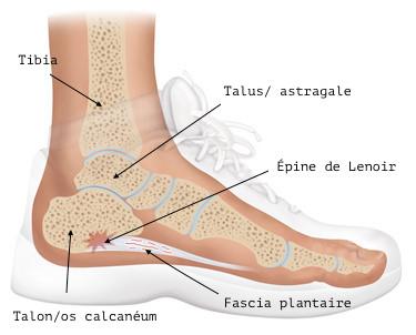 douleur plante pied